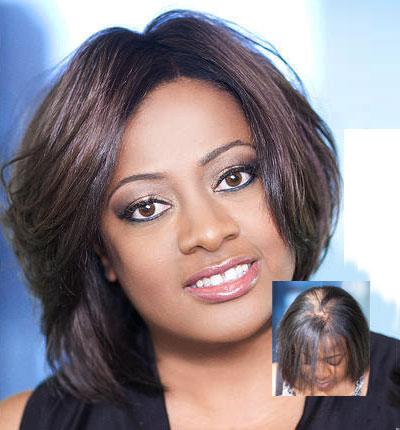 African american female hair replacement atlanta