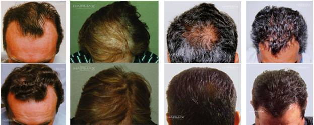 laser hair loss treatment therapy atlanta georgia